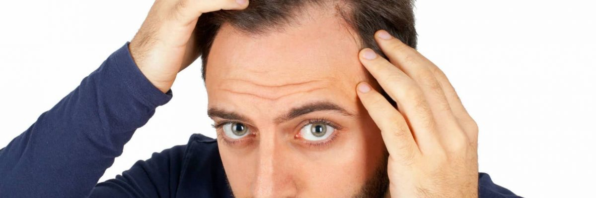 What are the root causes of a receding hairline?