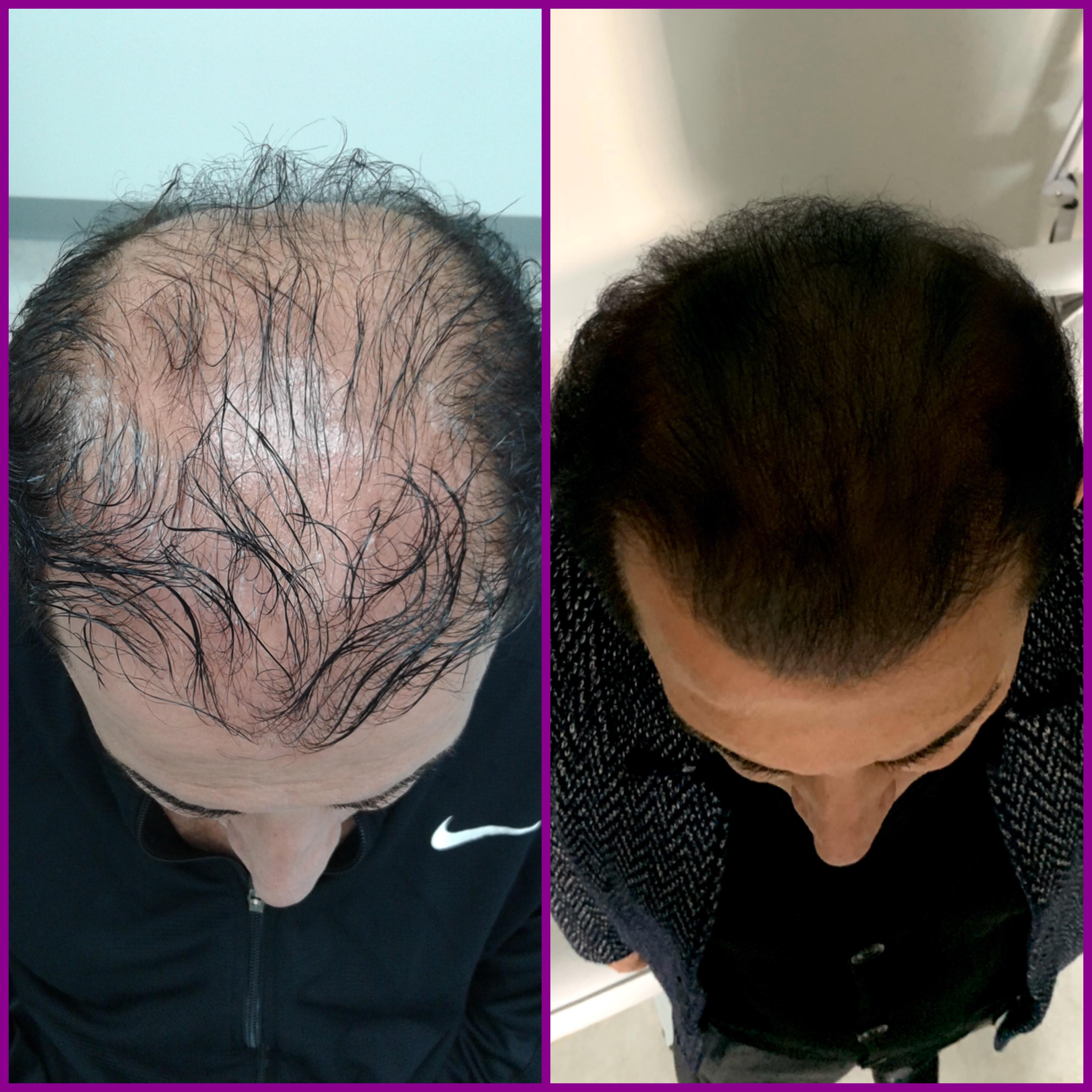 Hair Transplant Michigan