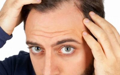 What actually causes a receding hairline?