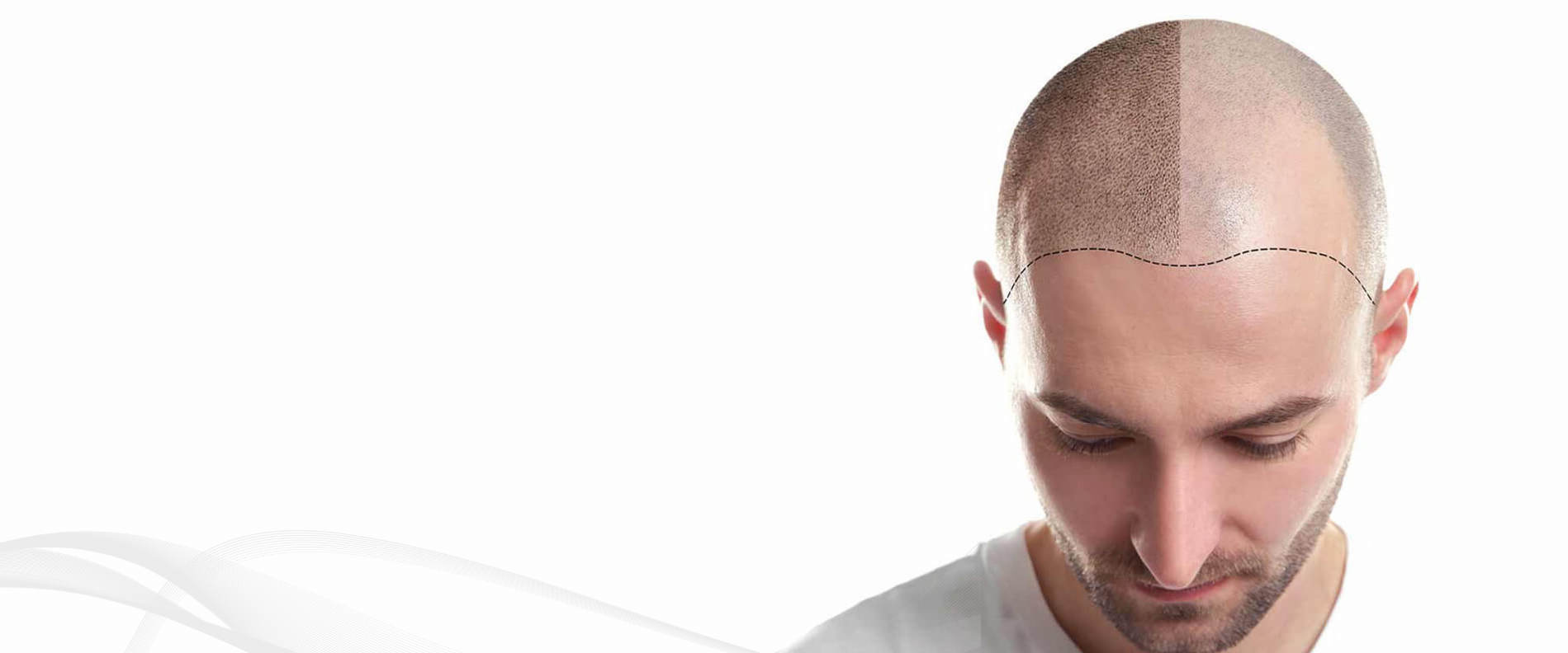 Hair Transplant Michigan