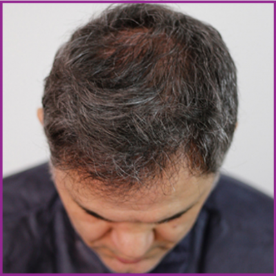 Dr Serdar After hair transplant
