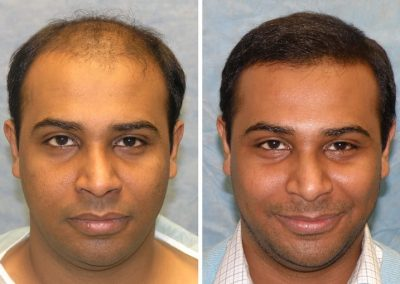 Venus | Hair Transplant Michigan