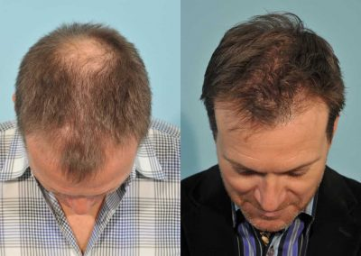 hair-transplant-before-after-2cd