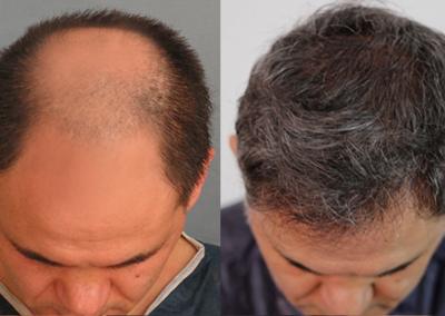 Dr Serdar Hair Transplant