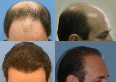 Hair Restoration Detroit